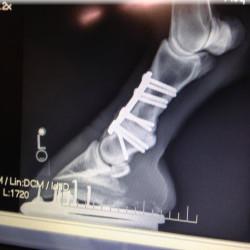 Chad X-ray
