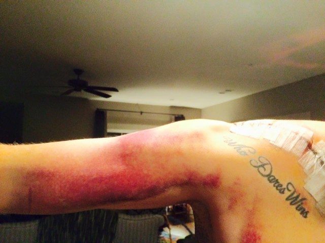 It wouldn't be Boyd if he didn't share pictures of his grossly bruised arm post surgery.