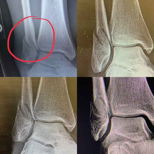 spiral comminuted fibular fracture #eventerproblems