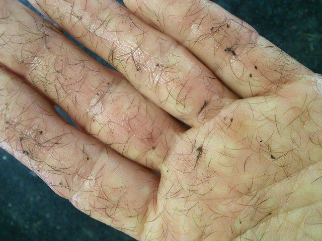 Banixx,Wound Care,Horse,Equine,Safe,Non-toxic,Bugs,Fungus,Bacteria,Ants,Mosquitos,Ticks,Flies,Gnats